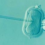 Sperm Kalitesini Etkileyen Şeyler Nelerdir, Erkeklerde Neden Kısırlık Olur?