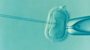 Sperm Kalitesini Etkileyen Faktorler